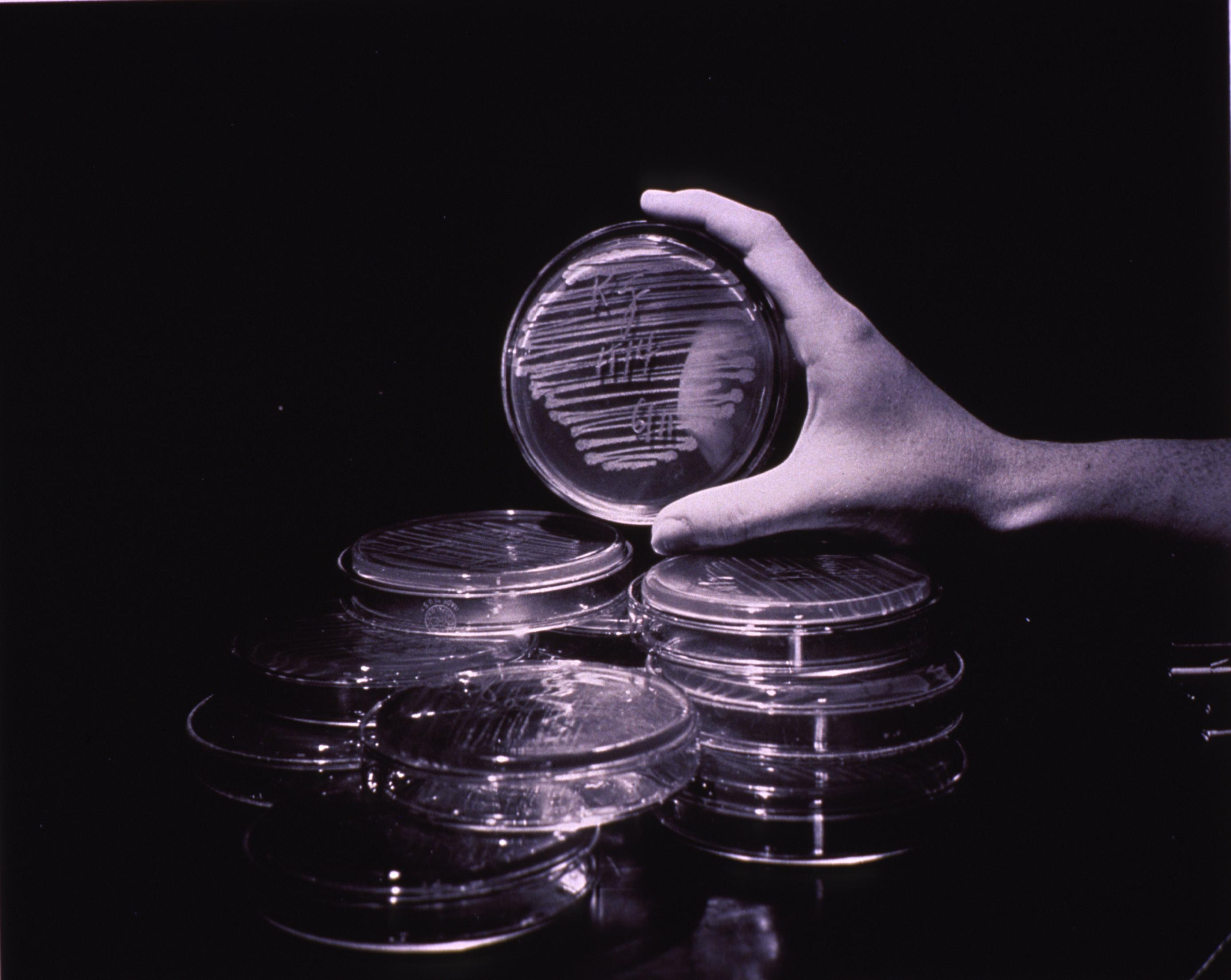Petri dishes.